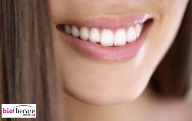 Blanqueamiento Dental Luz LED Cartagena