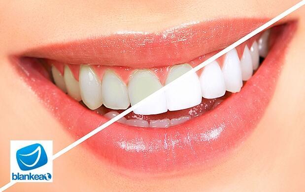Blanqueamiento dental LED en Murcia