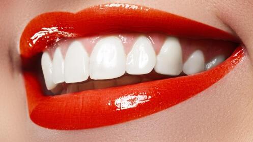 Luce tu mejor sonrisa con este blanqueamiento dental