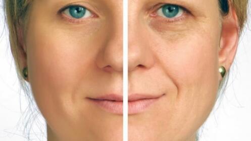 Facial, aunténtico HIFU en Geli D´Mora